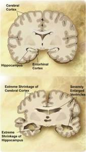 a look at the sixth leading cause of death in the united states alzheimers disease Website lets you test for alzheimer's risk, join clinical trials  disease is the sixth leading cause of death in the united states, and the third leading cause in.